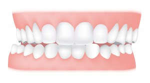 Crossbite <br> A crossbite is where your upper teeth bite inside your lower teeth. In can happen on one or both sides of your jaw and it can affect your front or back teeth.