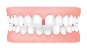Diastema <br> A diastema is aspace between two teeth, usually the front teeth. Madonna and model Lara Stone famously both have diastemas.
