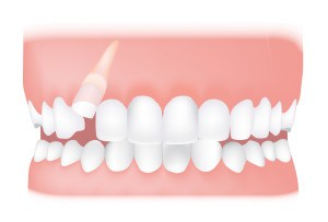 Impacted tooth <br> An impacted tooth is one that's unable to erupt through the gum normally. Possible treatments include removing the tooth, or exposing it so that a brace can be fitted.
