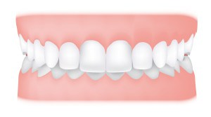Overbite <br> While there should be some overlap of your lower front teeth, in some cases an increased overbite can cause your front teeth to bite down onto your gums.