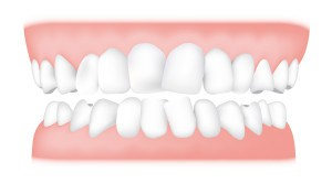 Crowding <br> Overcrowding is very common and it's often caused by a lack of space, resulting in teeth that are crooked and overlap. It's the most common reason for orthodontic treatment among adults.