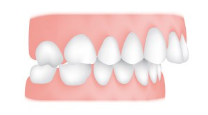 Overjet <br> Anoverjetis where your top teeth extend past your bottom teeth horizontally (not to be confused with an overbite). Protruding teeth can risk damage and cause problems with eating and speech.