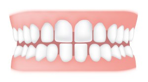 Spacing <br> Spacing can occur between two or more teeth. Some of the causes can include missing teeth, small teeth, tongue thrusting and thumb sucking.