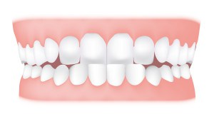 underbite <br> A crossbite that affects the front teeth is known as an anterior crossbite or underbite.