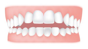 Open bite <br> An open bite is where the front teeth don't overlap the lower teeth. An open bite affecting the front teeth is known as an anterior open bite.